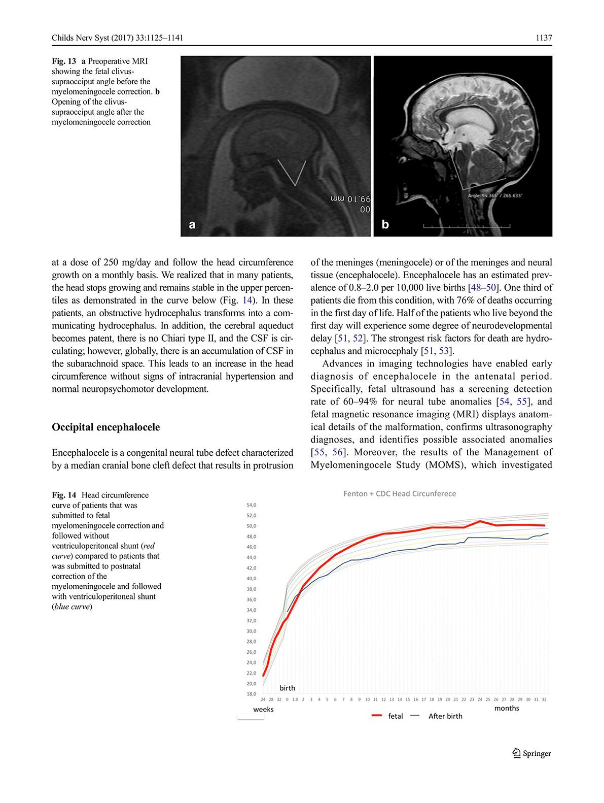 Hydrocéphalie. Prise en charge anté/postnatale